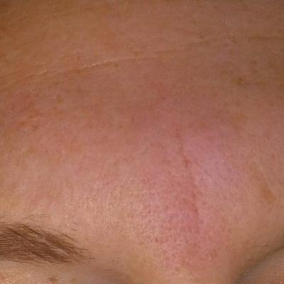 Mesoterapi, før, efter, behandling, rynkeudfyldning, læbeforstørrelse, mesoterapi